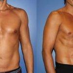 Liposuccion Vaser pour éliminer les graisses indésirables